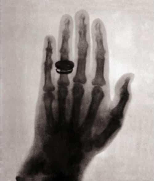 ¿De quien es la mano y por que gano un Premio Nobel?