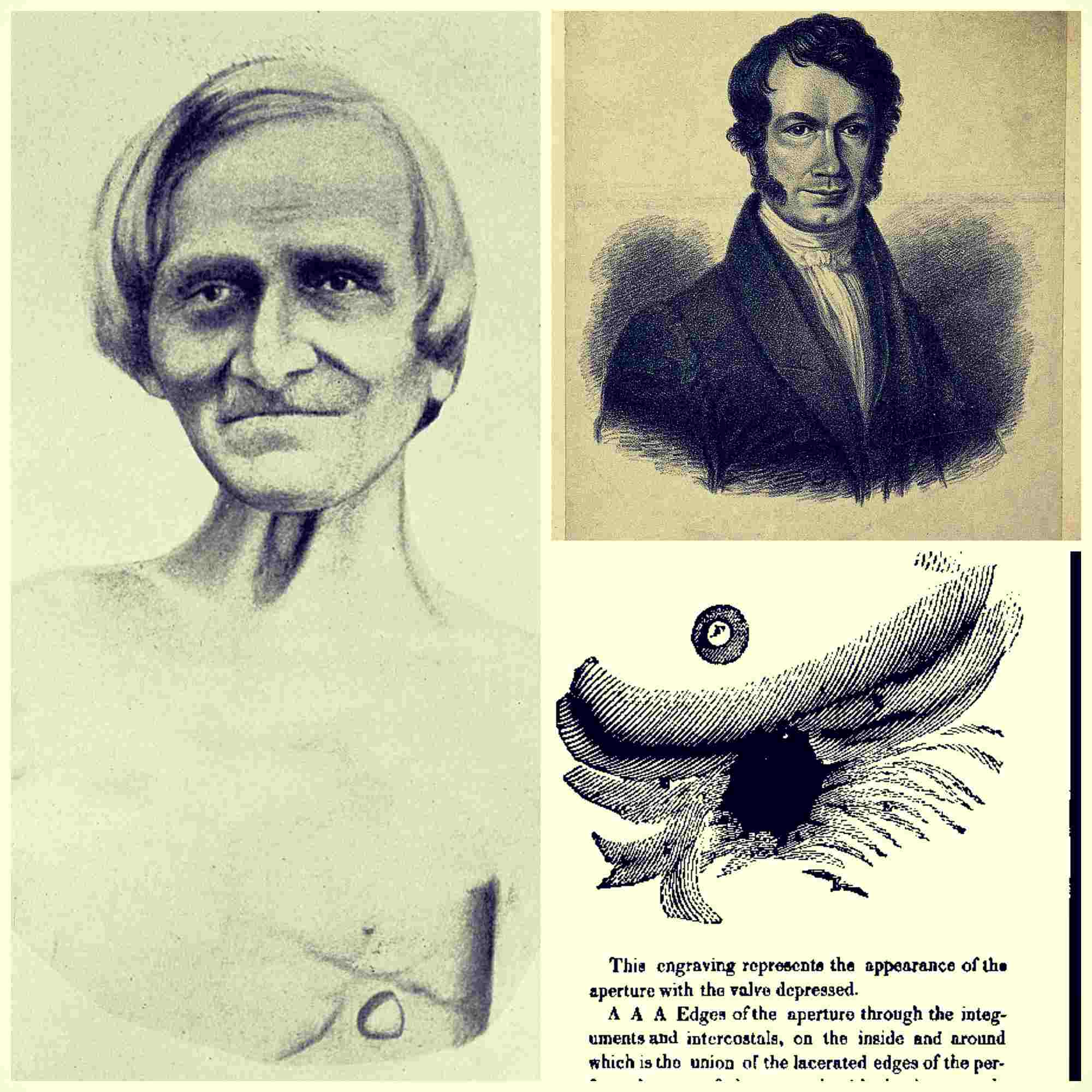 Alexis Saint Martin, el extraordinario caso del hombre probeta